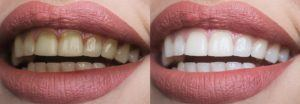 fluoride bisa menyebabkan gigi kuning dan kusam